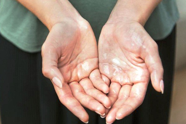 Nguyên nhân ra mồ hôi chân tay - 10 tuyệt chiêu xóa bỏ mồ hôi chân tay hiệu quả