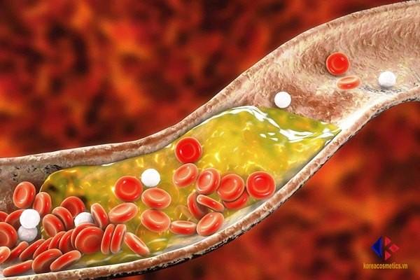 Người bị cholesterol cao nên ăn gì và kiêng gì?