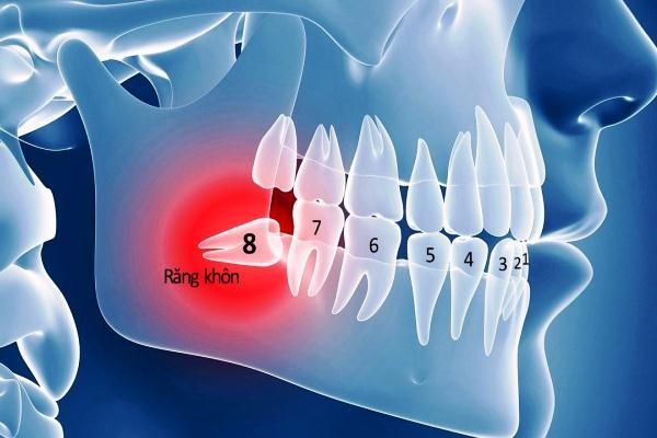 Tại sao gọi là răng khôn? Một người trưởng thành có bao nhiêu răng khôn?