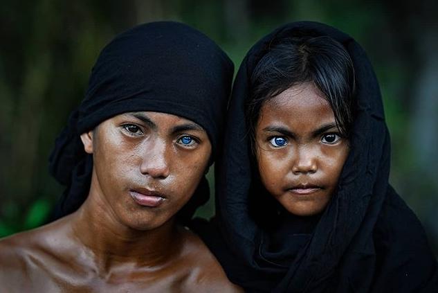 Bộ lạc sở hữu đôi mắt màu xanh đặc biệt do mắc hội chứng hiếm gặp