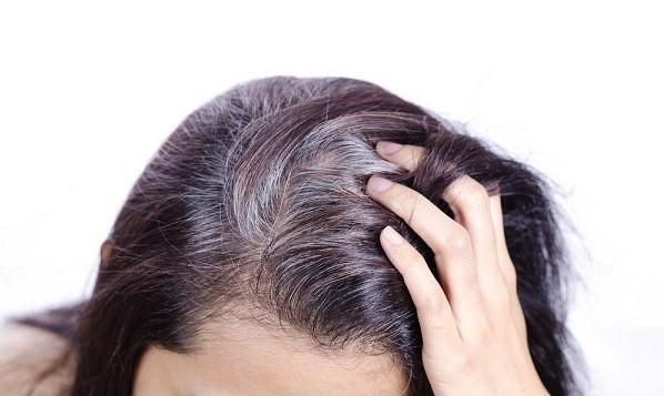 Vì sao ngày càng nhiều người trẻ bị bạc tóc