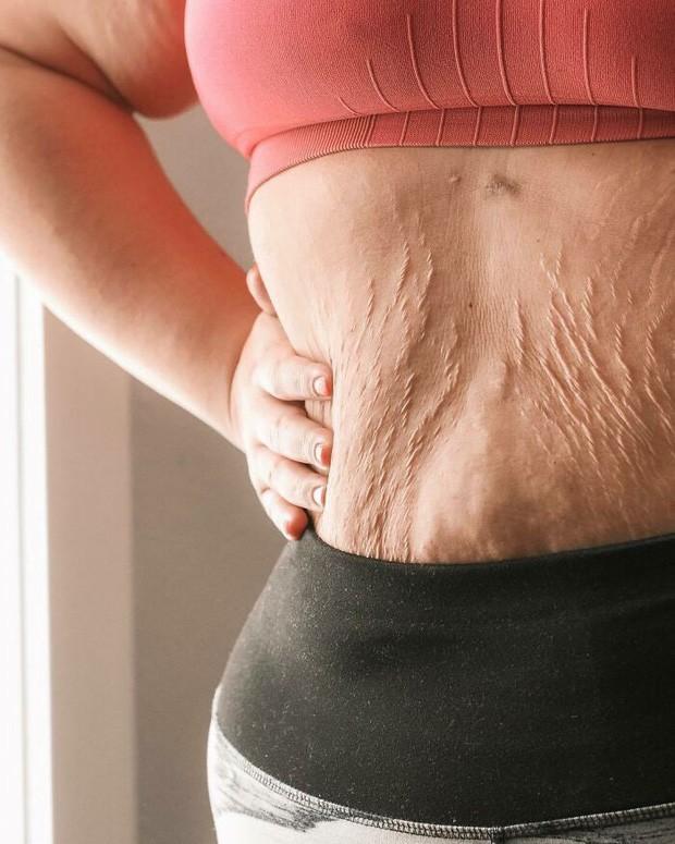 Chùm ảnh chân thật về những vết rạn sau sinh khiến ai nhìn vào cũng phải xót xa vì sự tàn phá kinh khủng đối với cơ thể phụ nữ