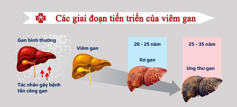 Nhiều người tình cờ đi khám mới biết bị ung thư gan: PCT Hội gan mật chỉ 8 dấu hiệu báo động