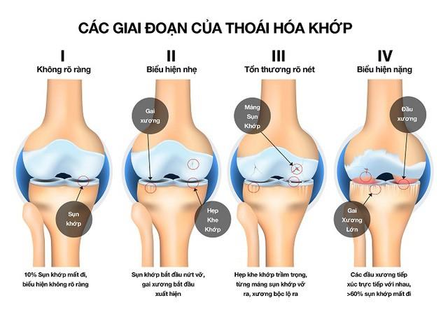 Bác sĩ BV Việt Đức cảnh báo căn bệnh hơn 23% người trung niên ở Việt Nam đều mắc phải