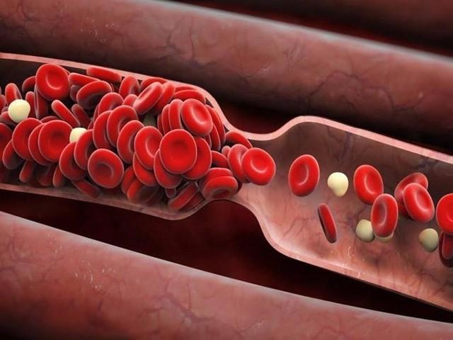 Chỉ cần làm sạch mạch máu thì các bệnh khác có thể tự biến mất