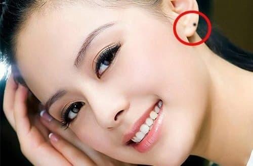Xem ngay nốt ruồi ở vành tai đánh thức hố vàng - nhất định bạn sẽ giàu sau tuổi này