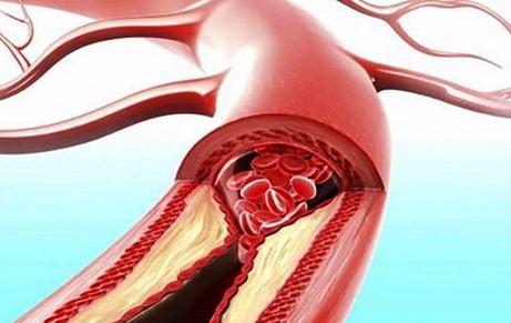 3 dấu hiệu bất thường ở tay chân: 80% khả năng bạn bị tắc mạch máu cần xử lý ngay