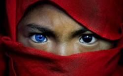 Sự thật đằng sau hiện tượng mỗi mắt một màu lạ lùng