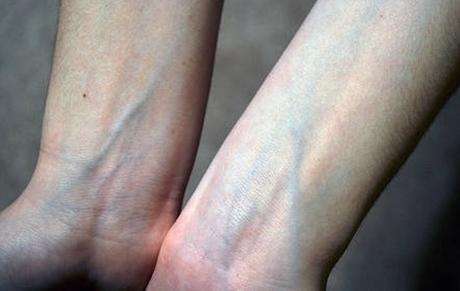 Vì sao tĩnh mạch của con người có màu xanh trong khi máu lại có màu đỏ?